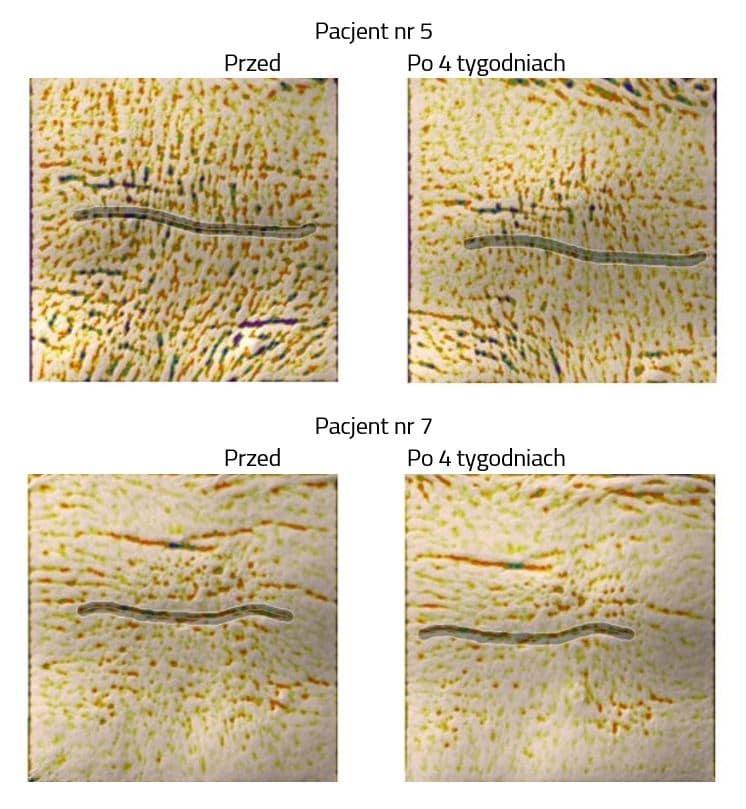 zmarszczki i serum apigenroyal